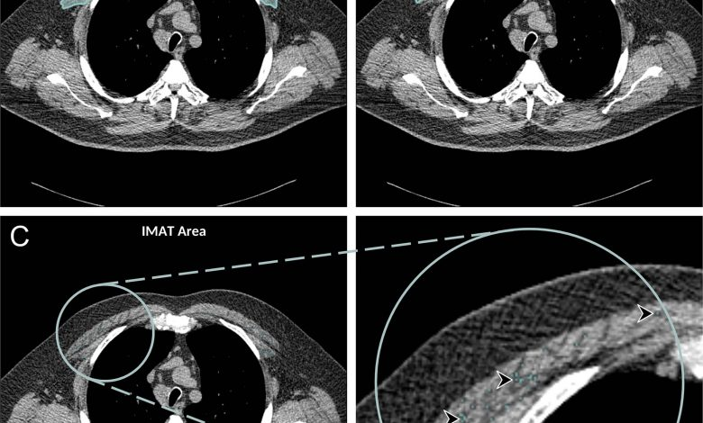 Chest CT Scans Illuminate Mortality Risk in People With COPD