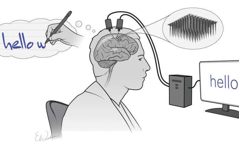 Brain implants let paralyzed man write on a screen using thoughts alone