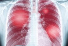 Lung Disease Chest X-ray