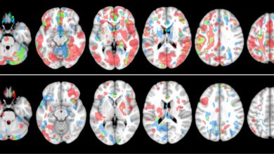 Examining Head Impacts and Abnormal Imaging in Youth Football Players Over Consecutive Seasons