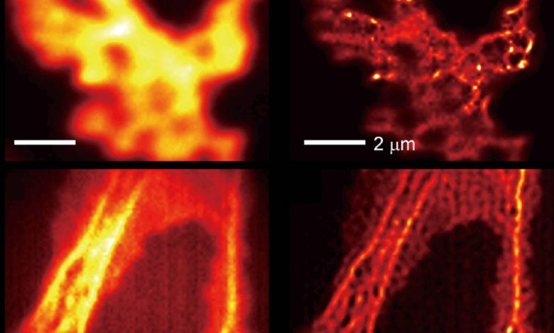 Ordinary Microscope Sees in Super-Resolution With Specially Engineered Light-Shrinking Material