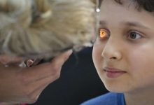unga passes first resolution for vision, eye care