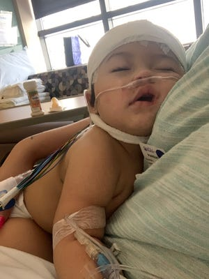 Ava Amira Rivera turns 1 Aug. 26. But earlier this month, she suffered severe illness from COVID-19. ICU beds in local hospitals were full, and she had to flown to a hospital 150 miles away.