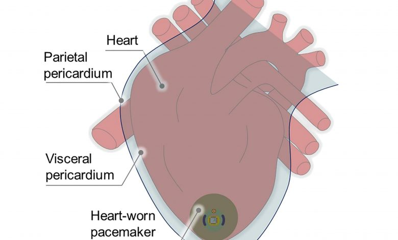 Pacemaker of the Future Could Harvest Kinetic Energy From the Heart – No Battery Needed