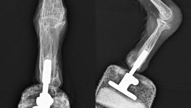 """The First """"Bionic Bird"""" – New Foot for """"Mia"""" the Bearded Vulture"""