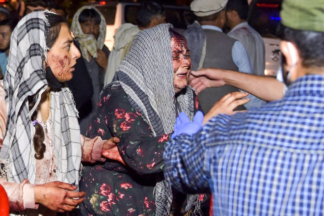 Wounded women arrive at a hospital for treatment after two blasts, which killed at least five and wounded a dozen, outside the airport in Kabul on August 26, 2021.