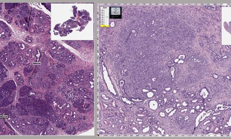 Mouse Pancreas With Cancer